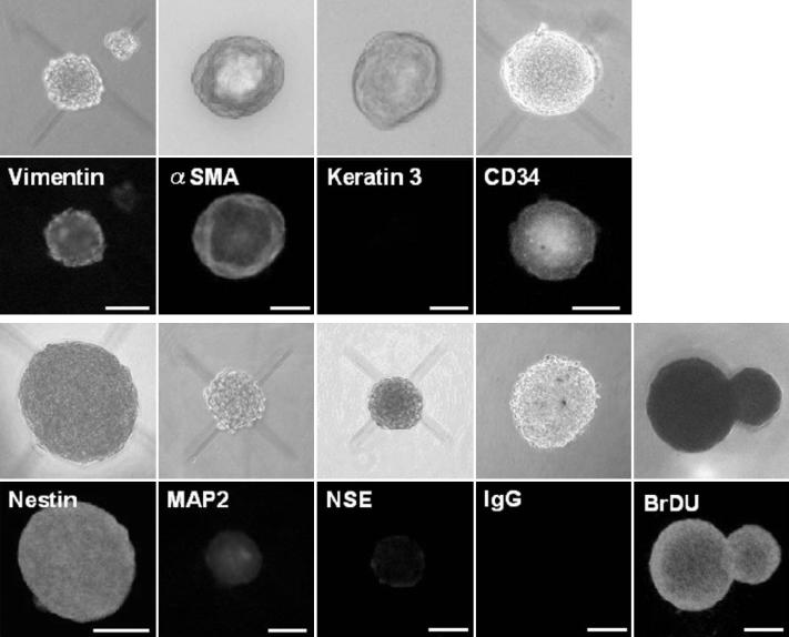 Immunocytochemical analysis of sphere colonies from the peripheral stroma on day 7. Bright-field images and immunostaining of spheres are shown. The spheres were stained for vimentin (a mesenchymal cell marker), \alpha-smooth muscle actin (α-SMA, a mesenchymal cell marker), cytokeratin 3 (a differentiated epithelial cell marker), nestin (a neural stem cell marker), microtubule-associated protein 2 (MAP2, a differentiated neural cell marker), neuron-specific enolase (NSE, a differentiated neural cell marker, and CD34 (a stem cell marker). Each colony is also labeled by BrdU. As a negative control, IgG was used instead of the primary antibody. Scale bar=100 μm.