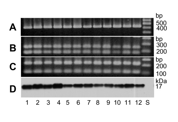 PCR-RFLP of pal and detection of its gene product, PAL, from clonally diverse A. actinomycetemcomitans strains. Panel A: Agarose gel electrophoresis of the PCR products shows amplicons with the expected size of pal (425 bp) for each strain. Panels B and C: Agarose gel electrophoresis of the purified PCR amplicons digested with Dde I and Bsp MI, separately. Panel D: immunoblot analysis of the A. actinomycetemcomitans whole cell protein preparations using anti-AaPAL peptide antiserum shows the expected 17-kDa signal for each strain. Lanes 1 through 12 strain identification (serotype; genotype): ATCC 29523 (a; 1), SA5002 (a; 1), ATCC 43718 (b; 2), SA5003 (b; 8), ATCC 33384 (c; 3), SA5005 (c; 3), SA5001 (d; 5), SA5007 (d; 22), SA5008 (e; 6), SA5011 (e; 20), CU1000R (f; nd*), SA5022 (f; 19) and standards (S). *nd: not determined.
