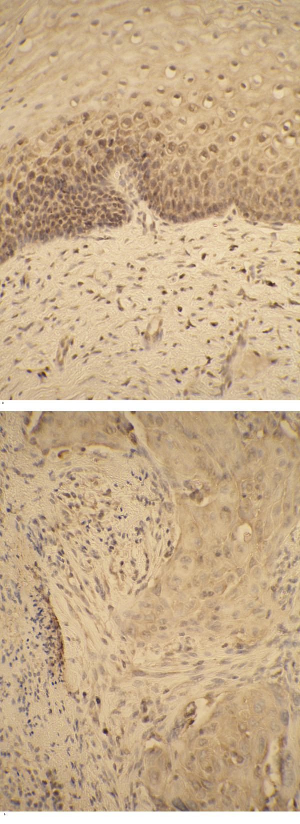 TNF-α positive cells in the cervix carcinoma – immunohistochemical staining of SCC specimens. Note: strong immunopositivity of the epithelial cells of control sample (a); TNF-α positive tumor cells and peritumoral stroma in cervix carcinoma (b).