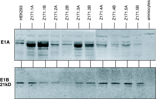 Expression of E1 proteins . Western Blot analyses for <t>E1A</t> and 21-kDa E1B proteins expressed in 10 E1-transformed amniocyte cell pools. Cells were lysed and proteins were size fractionated on a SDS-containing polyacrylamide gel. Proteins were transferred to nitrocellulose and probed with anti-E1A or anti-E1B 21-kDa antibody. Protein lysates from HEK293 or primary amniocytes were used as control.