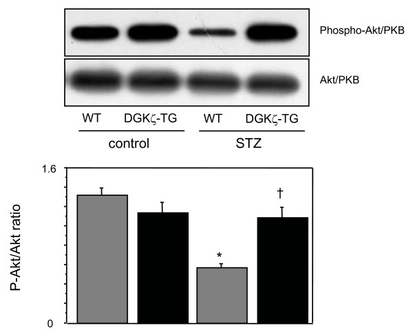 Representative immunoblots of left ventricular extracts with anti- phosphospecific <t>Akt/PKB</t> antibody (upper gel) in WT and DGKζ-TG mice at 8 weeks after injection of STZ or citrate buffer solution. The abundance of Akt protein was demonstrated by immunoblots with an antibody to total Akt (lower gel). Densitometric analyses of Akt phosphorylation were performed using 8 mice for each group. *P