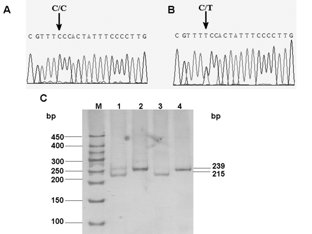 Mutation analysis of GJA8 . Sequence chromatograms of the wild-type allele ( A ) demonstrate a nucleotide sequence encoding a serine (Ser) at codon 276, and the chromatograms of the mutant allele ( B ) demonstrate a C to T transition resulting in the substitution of serine (Ser) by phenylalanine (Phe). Confirmation of segregation of the S276F mutation was given by the PCR-RFLP method ( C ). M is the DNA ladder; Lane 1 shows the digestions of the PCR products amplified from samples of the patients by Hpy188I. Lane 2 and 4 show the PCR products amplified from samples of one patient or the unaffected member in the pedigree. Lane 3 illustrates the digestions of the PCR products amplified from samples of the unaffected family member by Hpy188I. The mutant primer results in the gain of Hpy 188I sites producing digested fragments of 215 and 24 bp with wild-type GJA8 alleles, and the mutation in the GJA8 gene leads to an abolition of this site, remaining undigested (239 bp).