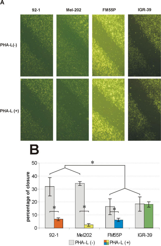 Effect of phaseolus vulgaris agglutinin on repair of wounds in monolayers of 92–1, Mel202, FM55P, and IGR-39 cells. A line was scratched with a plastic pipette tip through the confluent monolayer of cells maintained in serum-containing RPMI 1640 on a fibronectin-coated surface. The wounded cultures were allowed to heal for 24 h at 37 °C in the presence or absence of 25 μg/ml phaseolus vulgaris agglutinin (PHA-L) in serum-containing RPMI 1640. A: Panels show migration of cells in the presence or absence of PHAL after 24 h. B: The extent of wound closure was quantified by measurements of the width of the wound space for each case. For this value, the width was measured at twenty different locations in the wound and the mean value was compared to the width of the original closure (0 h). Values are means ± standard deviation of three separate experiments. Asterisk (*) indicates p