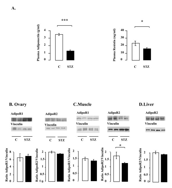 Effect of STZ treatment on the plasma levels of adiponectin and <t>resistin</t> (A) and on the protein levels of AdipoR1 and AdipoR2 in rat ovary (B), muscle (C) and liver (D) . A.A . Plasma adiponectin and resistin concentrations were determined by <t>ELISA.</t> C: control; STZ: streptozotocin. *p