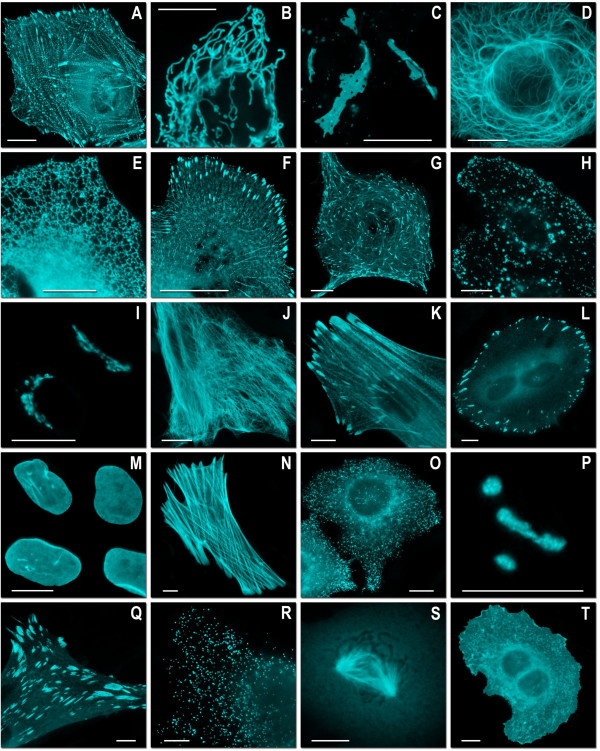 Fluorescence imaging of mTFP1 fusion constructs . (A)-(K) N-terminal fusion constructs; for each fusion protein the linker amino acid length is indicated after the name of the targeted organelle or fusion protein: (A) mTFP1-α-actinin-19 (human non-muscle); (B) mTFP1-mitochondria-7 (human cytochrome C oxidase subunit VIII); (C) mTFP1-Cx43-7 (rat α-1 connexin-43); (D) mTFP1-keratin-17 (human cytokeratin 18); (E) mTFP1-endoplasmic reticulum-3 (calreticulin signal sequence (51 nucleotides) and KDEL retention sequence); (F) mTFP1-paxillin-22 (chicken); (G) mTFP1-EB3-7 (human microtubule-associated protein; RP/EB family); (H) mTFP1-lysosomes-20 (rat lysosomal membrane glycoprotein 1); (I) mTFP1-golgi-7 (N-terminal 81 amino acids of human β-1,4-galactosyltransferase); (J) mTFP1-vimentin-7 (human); (K) mTFP1-zyxin-7 (human). (L)-(T) C-terminal fusion constructs: (L) mTFP1-focal adhesion kinase-5 (chicken protein tyrosine kinase 2); (M) mTFP1-lamin B1–10 (human); (N) mTFP1-β-actin-7; (O) mTFP1-clathrin light chain-15 (human); (P) mTFP1-fibrillarin-7 (human); (Q) mTFP1-vinculin-23 (human); (R) mTFP1-peroxisomes-2 (peroximal targeting signal 1; PTS1); (S)mTFP1-β-tubulin-6 (human); (T) mTFP1-farnesyl-5 (20-amino acid farnesylation signal from c-Ha-Ras). The cell line used for expressing mTFP1 fusion vectors was gray fox lung fibroblast cells (FoLu) in panels (A), (G), (K), (N) and Q) and human cervical adenocarcinoma cells (HeLa) in the remaining panels. Scale bars represent 10 μm.