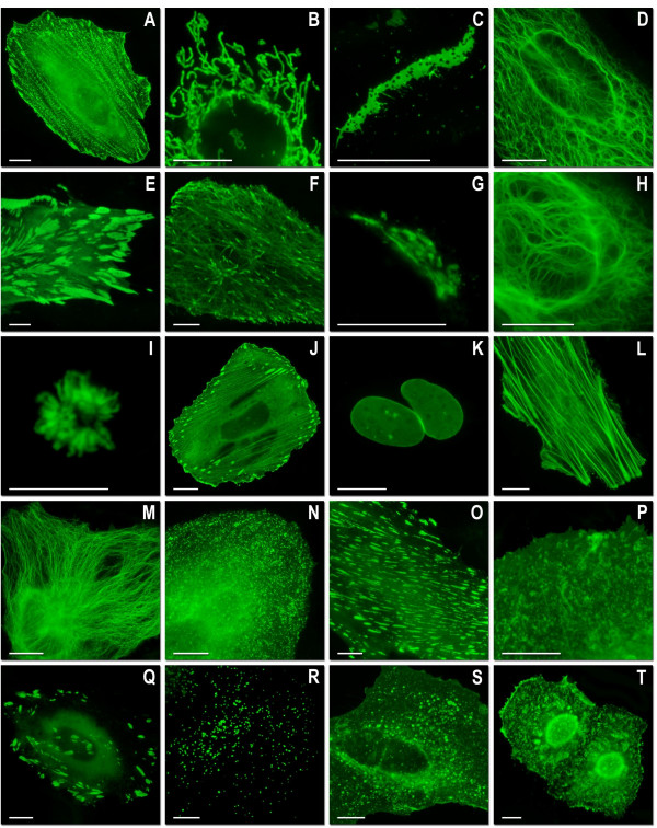Live cell imaging of mWasabi fusion vectors . (A)-(J) N-terminal fusion constructs; for each fusion protein the linker amino acid length is indicated after the name of the targeted organelle or fusion protein: (A) mWasabi-α-actinin-19 (human non-muscle); (B) mWasabi-mitochondria-7 (human cytochrome C oxidase subunit VIII); (C) mWasabi-Cx26-7 (rat β-2 connexin-26); (D) mWasabi-keratin-17 (human cytokeratin 18); (E) mWasabi-paxillin-22 (chicken); (F) mWasabi-EB3-7 (human microtubule-associated protein; RP/EB family); (G) mWasabi-golgi-7 (N-terminal 81 amino acids of human β-1,4-galactosyltransferase); (H) mWasabi-vimentin-7 (human); <t>(I)mWasabi-H2B-6</t> (human); (J) mWasabi-zyxin-7 (human). (K)-(T) C-terminal fusion constructs: (K) mWasabi-lamin B1-10 (human); (L) mWasabi-β-actin-7; (M) mWasabi-β-tubulin-6 (human); (N) mWasabi-clathrin light chain-15 (human); (O) mWasabi-vinculin-23 (human); (P) mWasabi-farnesyl-5 (20-amino acid farnesylation signal from c-Ha-Ras); (Q) mWasabi-focal adhesion kinase-5 (chicken protein tyrosine kinase 2); (R) mWasabi-peroxisomes-2 (peroximal targeting signal 1; PTS1); (S) mWasabi-endosomes-15 (human RhoB GTPase with an N-terminal c-Myc epitope tag); (T) mWasabi-annexin (A4)-15 (human). The cell line used for expressing mWasabi fusion vectors was gray fox lung fibroblast cells (FoLu) in panels (E) and (F) and human cervical adenocarcinoma cells (HeLa) in the remaining panels. Scale bars represent 10 μm.