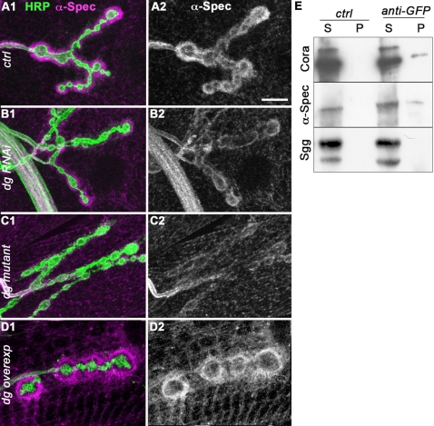 Dg controls postsynaptic Spectrin concentration and both Cora and Spectrin co-immunoprecipitate with Dg. Double staining for alpha-Spectrin (Magenta) and HRP (green)(1) in (A) control (yw CS ) larvae, (B) larvae expressing muscle dg -RNAi (dg-RNAi/+; 24B Gal4/dg-RNAi), (C) dg e01554 /dg 323 mutant larvae and (D) larvae overexpressing Dg-C isoform in the muscles (24B-Gal4/UAS-DgC). Single stainings for alpha-Spectrin are shown in (2). Scale bar is 10 µm. (E) Co-immunoprecipitation was performed with a <t>polyclonal</t> <t>anti-GFP</t> antibody on protein extracts from flies expressing Dg-C-GFP. S corresponds to the supernatant and P to the pellet. Cora and alpha-Spectrin co-immunoprecipitate with Dg-C-GFP, but not Shaggy (Sgg), a cytoplasmic protein kinase.