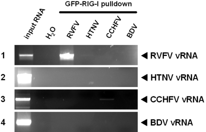 vRNA binding by RIG-I. GFP-RIG-I expressed by 293T cells was coupled to <t>protein</t> G <t>Sepharose</t> beads via a GFP-specific antiserum. Beads were incubated with vRNAs of either RVFV, HTNV, CCHFV, or BDV. After extensive washing, RNAs were extracted from the precipitates and cDNA synthesis was performed using random hexanucleotide oligomers. An aliquot of 10% of the input RNA was kept as RT-PCR control (first lane). All precipitated RNAs were subjected to RT-PCR specific for sequences of RVFV (panel 1), HTNV (panel 2), CCHFV (panel 3), and BDV (panel 4). H 2 O was used as negative control.