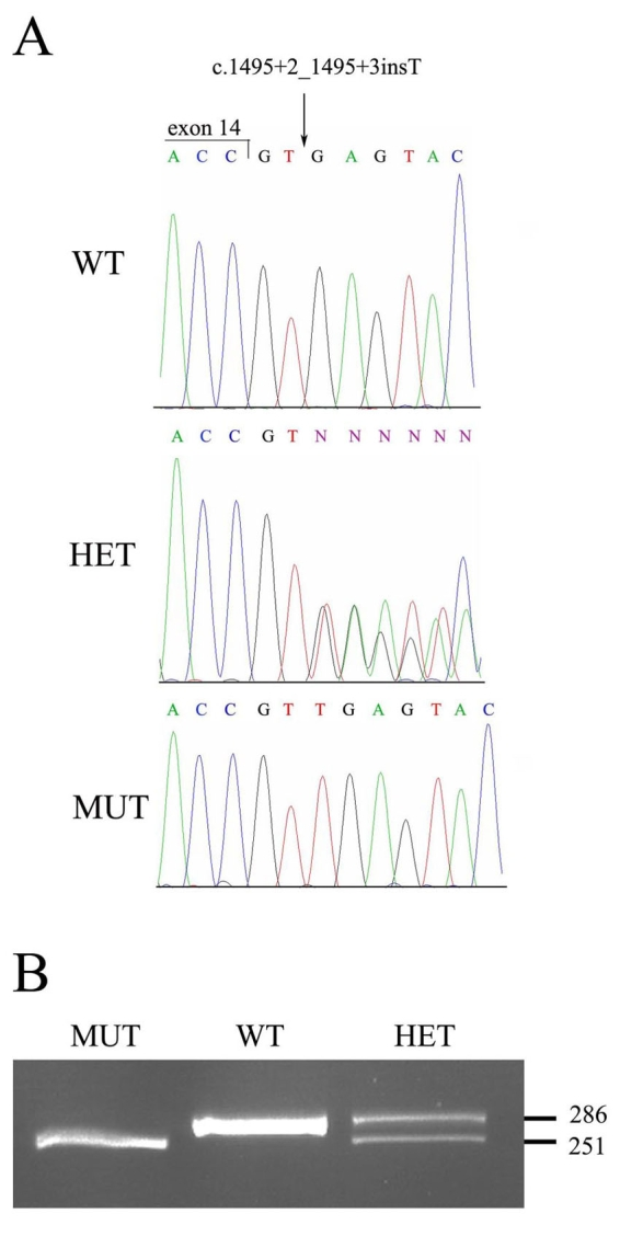The c.1495+2_1495+3insT mutation. A : Shown are nucleotide sequence traces of the boundary between TULP1 exon and intron14 in a non-carrier individual (wt), an individual heterozygote for the c.1495+2_1495+3insT mutation (het), and an affected individual homozygote for the mutant allele (mut). The exon-intron boundary is marked. B : A mismatch-primer restriction–based assay used to screen control DNA samples for the c.1495+2_1495+3insT mutation. The reverse PCR primer included one mismatched base, which, in combination with the mutant allele, but not with the WT allele, created a DrdI restriction site. A 286 bp PCR product derived from the WT allele was not digested by DrdI, while in the presence of the MUT two restriction fragments of 251 and 35 bp were obtained. Digestion of a PCR product derived from a heterozygote for the mutation (HET) yielded three fragments (286, 251, and 35 bp). The 35 bp fragment is not visible.