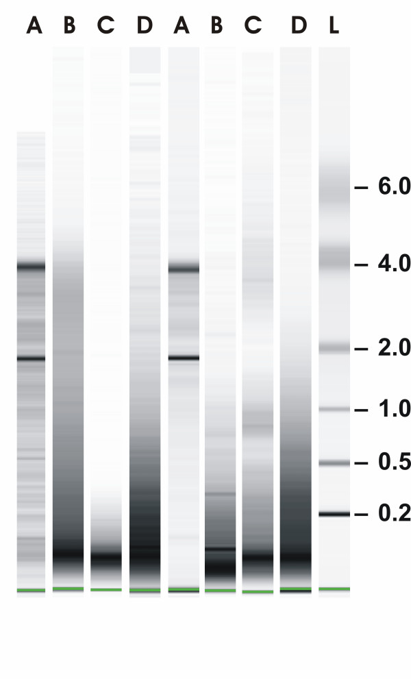 RNA isolation and characterization . Total RNA was isolated from kryo-sections (lanes A) and from paraffin sections according to the RNeasy FFPE protocol of Qiagen (lanes B), the ncLysis protocol of Applied Biosystems (lanes C) or according to our own protocol (lanes D). Aliquots of each RNA were separated by capillary electrophoresis (Agilent Bioanalyzer) on Nano chips along with RNA ladder (L; Ambion). Shown are RNAs from two representative tumors (Tu#10 and #18).