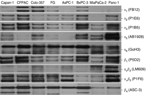 Integrin, E-cadherin, and β -catenin expression in pancreatic cancer cell lines. Immunoprecipitations were conducted using 4 μ g anti-integrin antibodies and 400 μ g cell-surface-biotinylated extracts from pancreatic cancer cell lines as described in Materials and Methods. Immunoprecipitates were separated on 12% Nu–PAGE gels under nonreducing conditions, and protein bands were visualised using streptavidin–HRP and chemiluminescence. Autoradiograms for each particular integrin subunit or integrin heterodimer for each cell line are indicated in the right-hand margin.