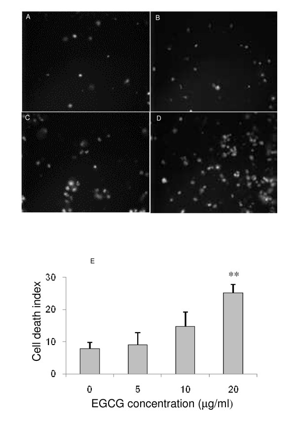 Effect of EGCG on cell death . Fluorescent images representing the effect of increasing concentrations of EGCG on cell death. The fluorescent probe propidium iodide was used to visualize dead cells. Compared to control (A) or to 5 μg/ml (B) and 10 μg/ml (C) of EGCG, we observed that 20 μg/ml (D) of EGCG induced a significant (p