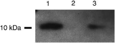 Western blot of S100A6, using the <t>polyclonal</t> anti-S100A6 antibody (Dako) on lysates from prostate cancer cell lines. Lane 1. Du145; lane 2, LNCaP; lane 3, PC3. Note the protein expression in Du145 and PC3 cells, seen as an ∼10 kDa band, but its absence in the LNCaP cell line.