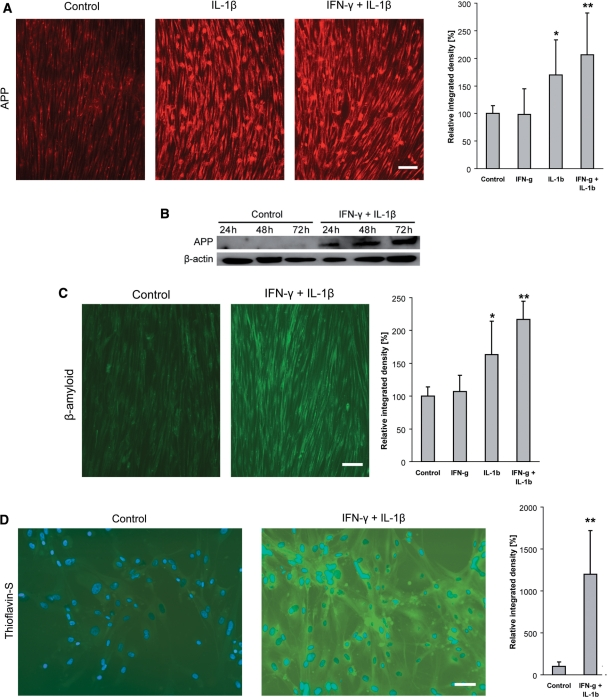 Overexpression of APP and accumulation of β-amyloid in human primary skeletal myotube cultures exposed to IL-1β (10 ng/ml) and/or IFN-γ (300 U/ml) for 24–72 h. ( A ) A 24 h exposure to IL-1β, alone or in combination with IFN-γ, induced enhanced staining for APP (Alexa-594, red). Grey-scale analysis of the same experiment demonstrates a significant increase of the staining intensity upon IL-1β, and even more in combination with IFN-γ. ( B ) Immunoblot analysis of APP demonstrates an increased level of protein expression upon 24–72 h of exposure to IL-1β in combination with IFN-γ. Protein loading in each lane is confirmed by detection of β-actin. ( C ) Staining for β-amyloid reveals an enhanced intracellular accumulation upon 48 h of exposure to IL-1β, particularly in combination with IFN-γ (Alexa-488, green). Grey-scale analysis of the same experiment demonstrates a significant increase of the staining intensity upon IL-1β, and even more in combination with IFN-γ. ( D ) After 48 h of exposure to IL-1β and IFN-γ, intracellular aggregation of β-amyloid is evidenced by thioflavin-S, which is statistically significant as revealed by grey-scale analysis of the same experiment. Photos taken by a CCD-camera using a conventional fluorescent microscope with a 10× ( A and C ) or 20× ( D ) objective. All photomicrographs for the analyses in this Figure have been acquired with the same settings of camera and microscope; all data are representative of at least three experiments with similar results. Scale bars represent 100 µm in A, C and 60 µm in D .