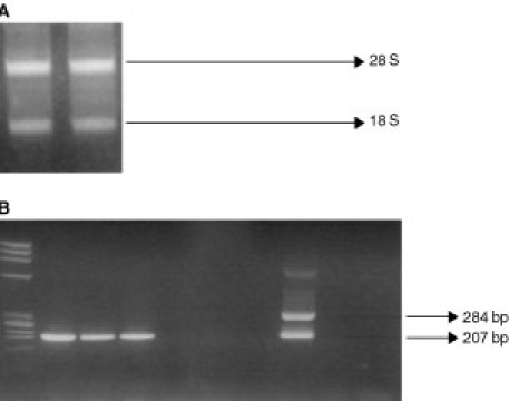 ( A ) 28 S and 18 S rRNA bands. Total RNA extraction as visualised in ethidium bromide stained 2% agarose gel. ( B ) Ethidium bromide-stained gel visualisation of RT–PCR products showing a 207 bp band in the positive samples. Lane 1. Molecular Weight Marker (ΦX174 RF DNA Hae III Digest). Lanes 2–4. Positive samples (three melanoma patients). Lanes 5–7. Negative samples (three melanoma patients). Lane 8. Positive control (SK-mel 28 cell line). Lane 9. Negative control (healthy donor). Lane 10. Negative control (sample without cDNA).