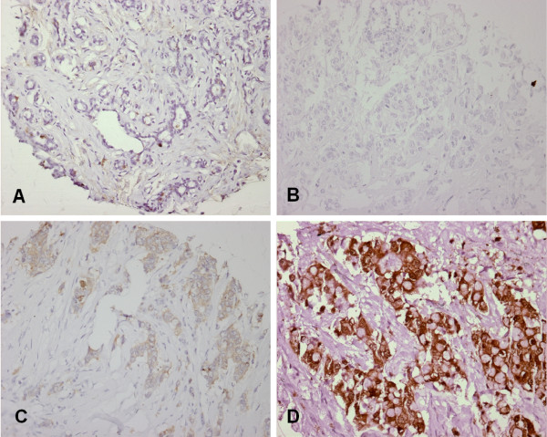 Immunohistochemical staining for NQO1 . A, normal, negative epithelium; B, negative tumor (0); C, weakly positive tumor (1); D, positive tumor (2).