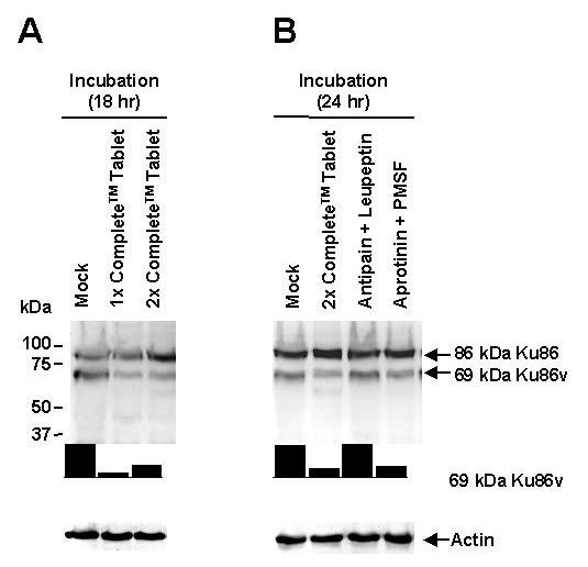 Proteolysis plays an important role in the intracellular generation of the 69-kDa Ku86v variant protein in MM cell lines . RPMI 8226 (A) and SGH-MM5 (data not shown) MM cell lines (5.0 × 10 6 cells/sample) were first incubated for 18 hrs with either 1× or 2× Complete™ protease inhibitor tablets (lanes 2 and 3); and then washed and checked for viability using trypan blue exclusion assay. Mock experiments in which cell lines were incubated for 18 hrs with media alone (lane 1) served as negative controls. Cell lysates were resolved by SDS-PAGE and immunoblotted using S10B1 anti-Ku86 mAb. The RPMI 8226 MM cell line s (B) was also incubated for 24 hrs with 2× Complete™ protease inhibitor tablets (lane 2), antipain (2.0 μg/mL final concentration) plus leupeptin (2.0 μg/mL final concentration) (lane 3), or aprotinin (2.0 μg/mL final concentration) plus PMSF (100 μg/mL final concentration) (lane 4) and analyzed in the same way as above. Mock experiments in which cell lines were incubated for 24 hrs with media alone (lane 1) again served as negative controls. Membranes were stripped and re-probed using anti-actin mAb (control) to confirm equal protein loading. Cell lysates were resolved by SDS-PAGE and immunoblotted using S10B1 anti-Ku86 mAb. Relative expression of 69-kDa Ku86v-DNA complexes (normalized to weakest band) was determined using image densitometry. All experiments were performed in triplicate.