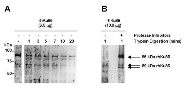 Trypsin digestion generates a 69-kDa Ku86 protein from a full-length cloned human MM Ku86 protein (rhKu86) in vitro . Full-length rhKu86 was first expressed and purified from COS cells. Serial digestion (A) of rhKu86 (6.5 μg/sample) by trypsin (0.065 μg of Trypsin Gold/reaction up to 20 mins) was then performed using a limited proteolysis protocol from the manufacturer. The reactions were stopped by rapid cooling on ice; and the products of trypsin digestion were resolved by SDS PAGE and immunoblotted S10B1 anti-Ku86 mAb. The effect of protease inhibitors aprotinin (2.0 μg/mL final concentration) plus PMSF (100 μg/mL final concentration) on trypsin digestion was also determined on a larger sample of rhKu86 (13.0 μg/sample). Trypsin digestion (0.065 μg of Trypsin Gold/reaction for 1 min) of rhKu86 was performed as above either without (lane 1) or with (lane 2) protease inhibitors (B).