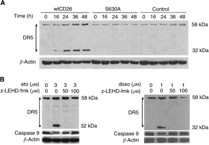 Effect of CD26/DPPIV on DR5 expression induced by etoposide treatment. ( A ) Jurkat cells were incubated at 37°C in culture media containing etoposide (3 μ M ) for the indicated time periods at the indicated doses. Cells were then harvested, and whole-cell lysates were obtained as described in Materials and Methods. Following SDS–PAGE of lysates, immunoblotting studies for DR5 and β -actin were performed as described in Materials and Methods. Each lane was loaded with 30 μ g of protein. Anti- DR5 mAb detects two bands of 58 and 32 kDa. ( B ) Following 2 h of preincubation at 37°C with varying doses of z-LEHD-fmk, wtCD26 Jurkat transfectants were treated with 3 μ M etoposide or 1 μ M doxorubicin for 48 h. Cells were then harvested, and whole cell lysates were obtained as described in Materials and Methods. Following SDS–PAGE of lysates, immunoblotting studies for DR5, caspase-9, and β -actin were performed as described in Materials and Methods. Each lane was loaded with 30 μ g of protein.