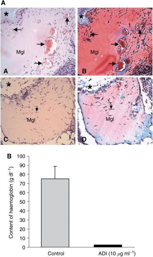 Inhibition of angiogenesis by ADI in vivo mouse Matrigel assay. Matrigel (0.4 ml) containing 50 ng ml −1 of <t>bFGF</t> and 60 U ml −1 of heparin in combination with or without 0.46 U ml −1 ADI was subcutaneously injected near the abdominal midline of the mice. ( A ) Histological analysis of Matrigel implants (for experimental procedures, see Materials and methods). Matrigel without ADI (A and B) showed formation of blood vessels with various sizes (arrows) forming in the Matrigel. Inside the vessel, red blood cells were observed (red colour in the vessel). However, ADI treatment clearly inhibited blood vessel formation (C and D). * Indicates connective tissues surrounding Matrigel implants. (A and C: haematoxylin–eosin staining, B and D: Masson-Trichrome staining). Original magnification x100. ( B ) Haemoglobin content in the Matrigel was measured with <t>Drabkin</t> reagent kit 525 to evaluate blood within the vessels formed 5 days after injection, calibrated against a known amount of haemoglobin in parallel. ADI potently inhibited growth factor-induced angiogenesis by 97%. Each value represents the mean±s.e.of five ADI-treated animals and seven per control group.