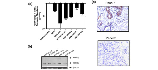 Expression of MRJ in breast cancer cell lines and tissues. (a) Expression of mammalian relative of DnaJ (MRJ) long isoform (MRJ [L]) is significantly lower in various breast cancer cell lines as compared with that observed in RNA from normal breast. Real-time quantitative RT-PCR was used to assess expression of MRJ(L) relative to endorse control gene glyceraldehyde 3-phosphate dehydrogenase (GAPDH). The data are represented as fold change in the abundance of the MRJ(L) transcripts using commercially available normal breast RNA as a calibrator. Each reaction was carried out in triplicate, and the experiment was repeated once with RNA from the same cell lines at a different passage. The error bars represent the standard error. (b) Expression of MRJ isoforms in various breast cancer cell lines. An equal amount of protein lysate (20 μg) was resolved on SDS-PAGE and immunoblotted for levels of MRJ isoforms. Equal loading was confirmed by comparable β-actin signal. (c) Tissue microarray staining for MRJ. A breast carcinoma progression array (CC08-00-001; developed by Cybrdi Inc.) was stained by 1:100 dilution (10 μg/ml) of DNAJB6 monoclonal antibody. Mouse IgG 1 was used for the isotype background control. Photomicrographs were taken in the area of most intense and diffuse staining for MRJ. The photomicrographs are representative images showing staining patterns of MRJ. Panel 1 corresponds to cystic hyperplasia, and panel 2 corresponds to infiltrating ductal carcinoma grade III.