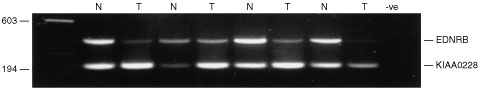 Comparative multiplex RT–PCR of EDNRB and the control gene KIAA0228 in SCLCs. N: cDNA from matched normal tissue. T: Tumour cDNA.
