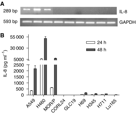 Expression of IL-8 mRNA and protein in lung cancer cell lines. Expression of IL-8 mRNA was measured by RT–PCR ( A ). A 1 μ g portion of total RNA was reverse-transcribed for PCR reactions of IL-8 and control GAPDH. The expected 289 bp band of IL-8 mRNA was strongly expressed in A549, H460 and MOR/P, but was undetectable in all SCLC cell lines. Production of IL-8 protein was measured by ELISA ( B ). Conditioned medium was collected after 1 × 10 6 cells were cultured in serum-free RPMI medium for 48 h. Each bar is the mean±s.e. of three determinations from two independent experiments.