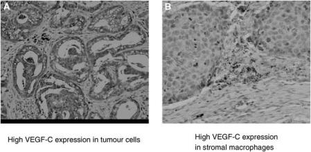 Expression of VEGF-C in NSCLC. Vascular endothelial growth factor C was observed in ( A ) tumour cells and ( B ) stromal macrophages.