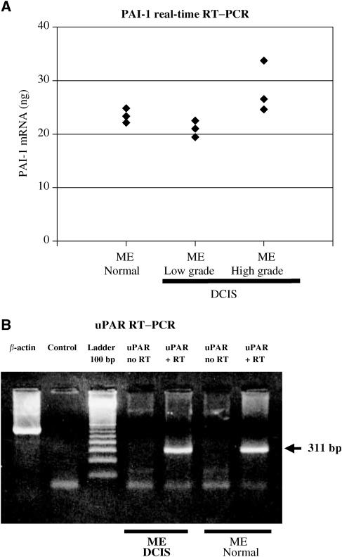 ( A ) Quantitative RT–PCR of mRNA derived from microdissected MEs of normal breast tissue, low- and high-grade DCIS using PAI-1-specific primers. From each group one case was selected and a LightCycler™ analysis was performed in triplicate. The amount of PAI-1 mRNA was calculated by assorting each CP to a standard curve. ( B ) The RNA of MEs (DCIS and normal breast tissue) was isolated, reverse transcriptase reaction followed by a PCR using uPAR primers (see Materials and methods) was performed. The RT–PCR reveals a 311 bp product in both probes (DCIS and normal breast tissue); without RT reaction no product was received.