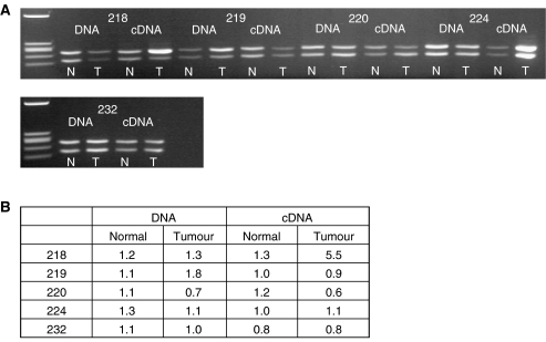 RFLP-cmRT–PCR and –PCR analysis of S100A2 in NSCLC. A region of the S100A2 gene containing a cSNP was amplified from DNA and cDNA by PCR and RT–PCR, respectively. Reaction products were digested with Hinf I and run on a 3% agarose gel ( A ). Products were also run on an Agilent bioanalyser DNA 1000 chip. Peak heights of the noncutting allele (upper product on the agarose gel) were divided by those of the cutting allele (lower band on agarose gel) to give a relative value for the cutting allele compared to the noncutting allele ( B ). Patient 218 shows an imbalance in the cDNA (allelic expression imbalance) of the tumour sample compared to the normal tissue.
