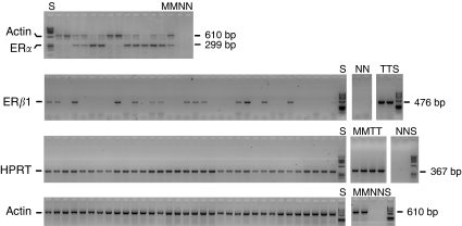Reverse <t>transcription–PCR</t> analysis of ER α , ER β , actin and HPRT. Oestrogen receptor α and actin PCR were performed as a duplex (top) and all other PCRs as single reactions. Controls included were cDNA negative reactions (N), MCF-7 cDNA (M) and testis cDNA (T). All samples were run on agarose gels with Phi X174/ Hae III <t>DNA</t> size markers (S).