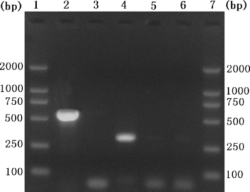Agarose gel electrophoresis of PCR products amplified from mixed genomic DNA of C. irritans and I. multifiliis . Lanes 1 and 7 represent a DNA size marker. Lane 2 presents the mixture of C. irritans and I. multifiliis DNA amplified using the primer set P1/S15 and lane 3 represents the genomic DNA of I. multifiliis . Lane 4 represents the mixed genomic DNA of C. irritans and I. multifiliis amplified using the primer set S01–S02. Lane 5 represents the genomic DNA of C. irritans using the primer set S01–S02. Lane 6 represents no-DNA control