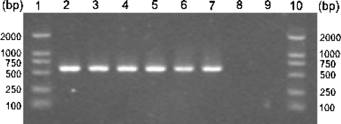 Agarose gel electrophoresis of PCR products amplified from the simulated water body using Cryptocaryon irritans -specific primer set P1/S15. Lanes 1 and 10 represent a DNA size marker, lanes 2 to 7 represent C. irritans from the infected water, lane 8 represents the uninfected water, and lane 9 represents no-DNA control