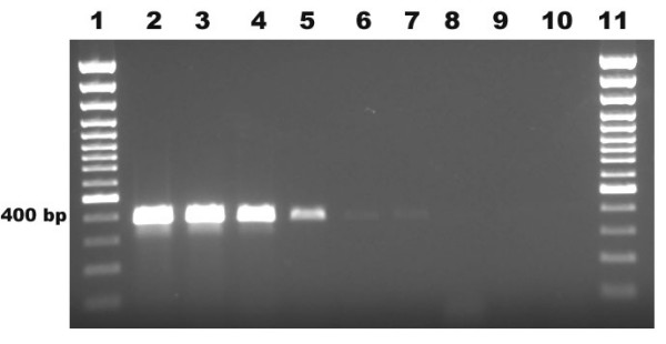 Sensitivity of PCR at the DNA level using 10-fold dilutions of Aspergillus versicolor DNA . Lane 1, 100 bp plus marker; lane 2, 10 ng; lane 3, 1 ng; lane 4, 100 pg; lane 5, 10 pg; lane 6,1 pg; lane 7, 100 fg; lane 8, 10 fg; lane 9, 1 fg; lane 10, negative control and lane 11, 100 bp plus marker.
