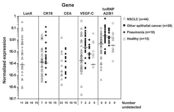 LunX mRNA is the most specific gene marker for lung cancer cells in peripheral blood . LunX, CK19, CEA, VEGF-C, hnRNP A2/B1 and β-actin mRNA from each peripheral blood sample were detected by real-time RT-PCR, and mRNA copy number was determined by reference to the standard curve, as described in methods. The copy number of each mRNA was further normalized as the ratio to the copy number of β-actin in all samples. For each gene marker, when the copy number was less than 100, it could not be detectable as a negative case. All the negative results of each indicated gene were shown as number undetected. The median is marked as