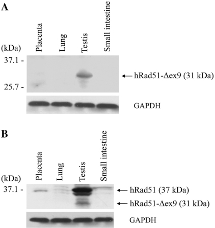 Detection of hRad51-Δex9 in human tissues by western blot analysis. Approximately 100 μg of human placenta, lung, testis and small intestine tissue extracts were subjected to western blot analysis using a hRad51-Δex9-specific antibody ( A ) or a commercial hRad51 antibody ( B ).