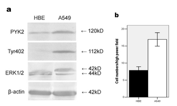PYK2 expression, Tyr402 and ERK1/2 phosphorylations, as well as cell migration in HBE and A549 cells. (a) PYK2 expression, Tyr402 and ERK1/2 phosphorylations in HBE and A549 cells by western blot. (b) Comparisons of migratory abilities between HBE and A549 cells by Transwell assay. The data are representative of three individual experiments.