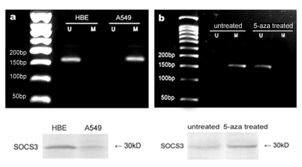 Methylation status and expression of SOCS3 in HBE and A549 cells. (a) Methylation status of SOCS3 in HBE and A549 cells, using the primer set designed in the exon 2, and detection of SOCS3 expression by western blot. The observed bands in lane M are methylated 159 bp products with methylation-specific primers and that in lane U are unmethylated 159 bp products with unmethylation-specific primers. Methylation was found in A549 cells but not in HBE cells and HBE cells expressed higher level of SOCS3. (b) The visible band in lane U appeared in A549 cells and SOCS3 was reactivated by the treatment of 5-aza-2'-deoxycytidine. The results are representative of three independent experiments.