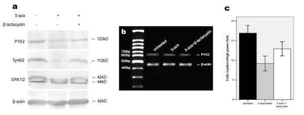 Up-regulation of SOCS3 by 5-aza-2'-deoxycytidine treatment inhibited cell migration and associated PYK2 expression, Tyr402 and ERK1/2 phosphorylations. (a) Decreased PYK2 expression, Tyr402 and ERK1/2 activations and migration of A549 cells were observed by SOCS3 up-regulation. A549 cells were treated with 5-aza-2'-deoxycytidine for 6 d, and cell lysates were analysed by western blot using the indicated antibodies. Elevated PYK2 expression, Tyr402 and ERK1/2 phosphorylations were found by the pretreatment of β-lactacystin. (b) PYK2 mRNA levels remained invariable regardless of treatment or not. The amplified PYK2 products were 629 bp in length. β-actin amplification demonstrated the consistency of PT-PCR. (c) Cell migration was suppressed by SOCS3 restoration, and the β-lactacystin pretreatment facilitated cell migration to some extent. The values are means of three replicates.