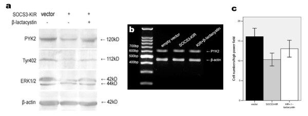 Effects of SOCS3-KIR mutant on PYK2 expression, Tyr402 and ERK1/2 activations and migration of A549 cells . (a) Down-regulations of PYK2 expression, Tyr402 and ERK1/2 phosphorylations by SOCS3-KIR mutant. A549 cells were transfected with either vector or the SOCS3-KIR mutant for 48 h, and cell lysates were subjected to western blot using the indicated antibodies. Cells pretreated with β-lactacystin showed that PYK2 expression, Tyr402 and ERK1/2 phosphorylations were restored to some extent. (b) PYK2 mRNA levels were unaffected regardless of transfection or not. The amplified PYK2 products were 629 bp in length. β-actin amplification demonstrated the consistency of PT-PCR. (c) Cell migration inhibited by the SOCS3-KIR mutant was statistically significant, and β-lactacystin pretreatment restored cell migration to some degree. The values are means of three replicates.