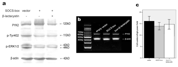 Effects of SOCS-box mutant on PYK2 expression, Tyr402 and ERK1/2 activations and cell migration . (a) Decreased PYK2 and ERK1/2 phosphorylations by SOCS-box mutant with the same PYK2 expression. A549 cells were vector- or the SOCS-box mutant-transfected for 48 h, and cell lysates were analysed by western blot using the indicated antibodies. (b) PYK2 mRNA levels were unaffected regardless of transfection or not. The amplified PYK2 products were 629 bp in length. β-actin amplification demonstrated the consistency of PT-PCR. (c) Cell migration suppressed by the SOCS-box mutant was not statistically significant. The values are means of three replicates.