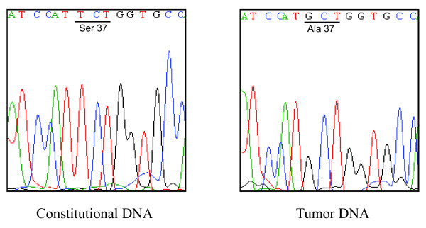 Representative results of direct DNA sequencing of CTNNB1 exon 3 . Constitutional DNA from blood (left panel) and parathyroid adenoma (right panel) of the same pHPT patient.