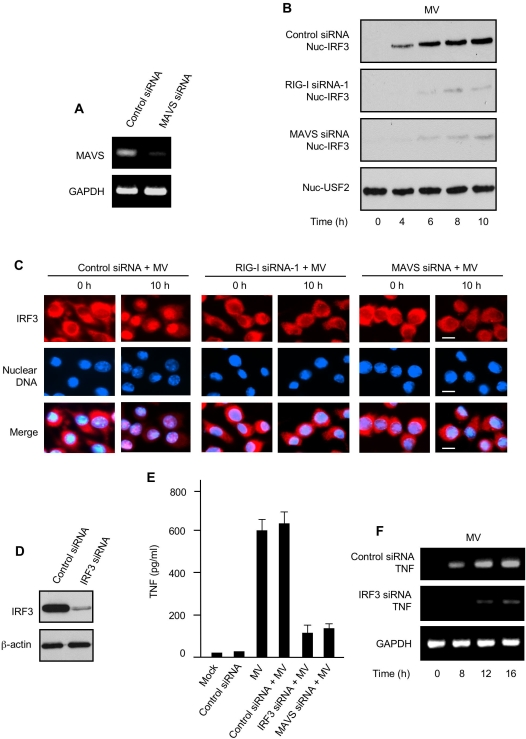 IRF3 is critical for triggering MV-elicited TNF induction in primary human macrophages. (A) pHMs were transfected with control siRNA or MAVS siRNA. The cells were analyzed 48 h later by RT-PCR for the indicated mRNA levels. GAPDH was used as the control. (B) Control siRNA pHMs or RIG-I siRNA or MAVS siRNA pHMs as indicated were infected with MV for various times (below lanes) and the nuclear extracts were probed for nuclear IRF3 (nuc-IRF3). Nuclear USF2 (nuc-USF2) was used as nuclear protein loading control. (C) Control siRNA pHMs or RIG-I siRNA or MAVS siRNA pHMs as indicated were infected with MV for 0 h or 10 h and were immunofluorescence-stained for IRF3 (red). Nuclear DNA was counterstained with DAPI (blue). Bars are 10 µm. (D) pHMs were transfected with control siRNA or IRF3 siRNA as indicated and were analyzed 72 h later by immunoblotting for IRF3 protein levels. β-actin was used as control. (E) pHMs or various siRNA pHMs as indicated were infected with MV for 24 h and TNF protein in the culture supernatants was assessed by ELISA. Data represent mean +/− SD. (F) Control siRNA pHMs or IRF3 siRNA pHMs were infected with MV for various times (below lanes) and the cells were analyzed by RT-PCR for the indicated TNF mRNA levels. GAPDH was used as control.