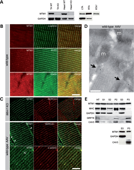 Subcellular localization of myotubularin in skeletal muscle . (A) Detection of endogenous myotubularin by western blot. Left panel shows the presence of myotubularin in wild-type (WT) but not KO skeletal muscle and heart. Glyceraldehyde-3-phosphate dehydrogenase (GAPDH) immunoreactivity was used as an internal control. Right panel illustrates the level of expression of myotubularin 6 weeks after adeno-associated virus (AAV) injection; 75 and 7.5 µg of proteins were loaded for phosphate-buffered saline (PBS) (LTA) and AAV (RTA)-injected WT muscles, respectively. A lower exposure of myotubularin band in RTA (RTA*) is shown to illustrate the doublet. ( B ) Localization of endogenous myotubularin in skeletal muscle. Semithin cryosections (0.5 µm) of WT muscle were stained for MTM1 (myotubularin), α-actinin (Z-lines), ryanodine receptor (RYR) and triadin (both in triads). Occasional α-actinin-positive Z-lines appear yellow when oblique orientation of the sarcomeres in sections superimpose the Z-lines with the adjacent triadic regions. The bar represents 5 µm. ( C ) Localization of overexpressed myotubularin in skeletal muscle. Semithin Mtm1 -deficient (upper panels) and WT-AAV (middle and lower panels) muscle cryosections were stained for MTM1, SERCA1 (sarco-endoplasmic reticulum calcium ATPase 1) and α-actinin. Myotubularin antibody binds aspecifically to a region between I-bands in WT and KO myofibers, which probably corresponds to the M-band. Note myotubularin location at the sarcolemma (arrowheads) and around the Z-line (arrows) in WT-AAV muscle. The Z-line and I-band (endoplasmic reticulum) were labeled with antibodies against α-actinin and SERCA1, respectively. The bar represents 5 µm. ( D ) Subcellular localization of overexpressed myotubularin by immunoelectron microscopy. Triads (arrows) are labeled by r1947-coupled gold particles. Note the position of mitochondria (m, bar represents 200 nm). ( E ) Subcellular fractionation of skeletal muscle overexpressing myot