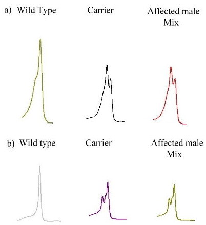 Result of DHPLC . DHPLC results of two families were illustrated. a) Family 85. b) Family 139. The wild type DNA showed homoduplex. The carrier DNA would show heteroduplex peak just as affected male after mixing with normal DNA.