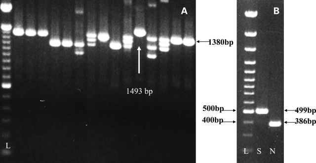 ( A ) The PCR products produced after nested PCR for ESR1 from cDNA derived from the DLPFC of patients with schizophrenia. Note that the samples are migrating on a slight downward diagonal. Lane 1 contains the 100 bp DNA ladder (L). The bright band in the first three sample lanes (lanes 2–4) and the last 2 lanes (15 and 16) corresponds to the expected 1380 bp amplicon (horizontal arrow). This ∼1.4 band would be predicted if all 8 coding exons were present in the ESR1 transcript (wild-type). Many bands with smaller than the predicted sizes are found in the range of 1 to 1.3 kb and can occur in different individuals (for example, compare lanes 4 to lane 5) or within the same individual (lanes 7, 8, 11, 13 and 14). The exact identities of these bands could not be definitively identified at this stage (see Materials and Methods). Note that in lanes 5, 6, 7 and 10 no wild-type bands are detected. In the 12th lane, a larger than predicted amplicon was observed (vertical arrow, 1493 bp). In panel B, the 1493 bp ESR1 transcript was confirmed to be about 100 bp longer by a separate PCR directly targeting ESR1 exons 4 and 5 in normal individuals (N) and in the patient with schizophrenia with this genomic insertion (S).