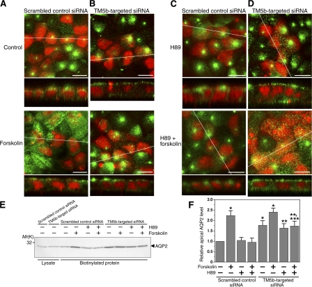 TM5b knockdown promotes AQP2 trafficking in MDCK/AQP2 cells. (A–D) MDCK/AQP2 cells were transfected with TM5b siRNA (B) or scrambled control siRNA (A), which was indicated by fluorescein-labeled dsRNA (red), and treated without (top) or with (bottom) forskolin. Pretreatment with H89 was also performed using the cells transfected with TM5b siRNA (D) or the control siRNA (C). Cells were labeled for AQP2 (green). Bars, 10 μm. (E and F) Apical cell surface biotinylation assay using MDCK/AQP2 cells transfected with TM5b siRNA or control siRNA, corresponding to A–D. (E) Biotinylated proteins were precipitated with streptavidin-agarose beads and immunoblotted for AQP2. (F) The densitometric quantification normalized to control siRNA-transfected cells without forskolin treatment. Data represent the mean and SE from three independent experiments. *, P