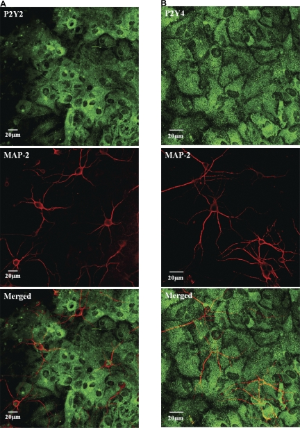 Confocal images of mixed hippocampal cultures immunostained with anti-P2Y receptors (green) and neuronal markers anti-MAP-2 (red). Both P2Y2 and P2Y4 receptor immunostaining is not seen in neuronal cell bodies or processes but astrocytes are profusely stained. In merged images, some pixels appear yellow because of the neurons (red) overlying the brightly stained (green) astrocytes.