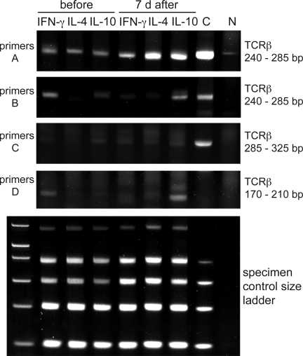Clonality and switch to IL-10–secreting T cells after bee stings. TCRVβ gene clonality was analyzed in PLA-specific IL-4–, IL-10–, and IFN-γ–secreting T cells before and 7 d after multiple bee stings. A clonal sample (C) and a nonclonal sample (N) were included as controls. The PCR products of three different test tubes were run on three different gels, and a band that results from a clonal sample appears in a range from 240 to 285 bp (primers A, tube 1), from 240 to 285 bp (primers B, tube 2), and from 285 to 325 bp and from 170 to 210 bp (primers C and D, tube 3). The specimen control size ladder master mix generates a series of amplicons to ensure that the quality and quantity of input DNA were sufficient for the test. Heteroduplex analysis of the PCR products (except for the specimen control size ladder) on 6% TBE polyacrylamide gels stained with ethidium bromide is shown. One representative out of three experiments is shown.