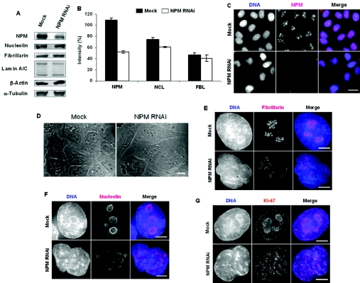 Depletion of NPM leads to a disorganized nucleolar structure in HeLa cells ( A ) Western-blot analysis at 48-h post-transfection of mock and NPM RNAi cells. The NPM expression level was reduced to ∼80% by RNAi. Other nucleolar proteins, such as fibrillarin and nucleolin, an NE protein, lamin A/C, and a cytoskeleton protein, β-actin, were immunoblotted. Western-blot analysis of α-tubulin served as loading controls. ( B ) Quantification of NPM, nucleolin (NCL) and fibrillarin levels in mock- and NPM-siRNA-treated cells in Western blots. Values are the means±S.D. of three independent blots. ( C ) Immunostaining for NPM (red) and DNA (blue) in mock and NPM RNAi cells. Scale bar, 10 μm. ( D ) Phase-contrast images of fixed cells showing the pattern of nucleolar organization in mock-treated cells and the distortion of this pattern in NPM-depleted cells. Scale bar, 10 μm. ( E – G ) Immunostaining for nucleolar proteins in mock and NPM RNAi cells. ( E ) Fibrillarin (red), ( F ) nucleolin (red) and ( G ) Ki-67 (red); DNA is shown in blue. Scale bars, 5 μm.